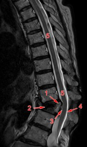 BWK 12 Keilfraktur: Keine Kompression des Rückenmarks